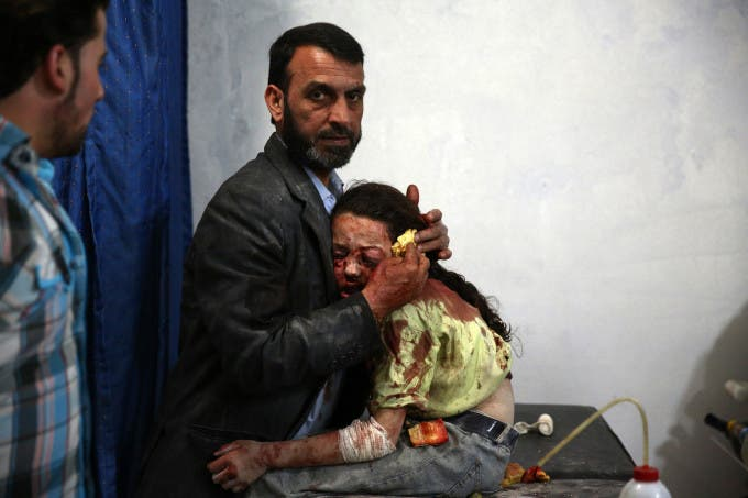 A wounded Syrian girl hold on to a relative as she awaits treatment by doctors at a makeshift hospital in the rebel-held area of Douma, east of the capital Damascus, following reported air strikes on the city on May 11, 2015. AFP PHOTO / ABD DOUMANY