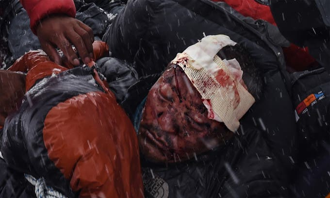 A man who suffered head trauma is bundled in a sleeping bag used as a makeshift stretcher as he was being taken by rescuers to a medical tent moments after a wall of rock, snow and debris slammed on Everest base camp on April 25, 2015 killing at least 22 people. The avalanche was triggered by a powerful 7.8-magnitude earthquake that killed more than 8,000 people in the country. Rescue helicopters managed to reach the site about 18 hours after the avalanche as bad weather, aftershocks and fears of further avalanches rattled survivors. At the time of the disaster, the 5,364-meter-high Base Camp was teeming with hundreds of climbers and supporting teams who use the base to prepare their ascent to the peak of Mount Everest, the tallest mountain on Earth.