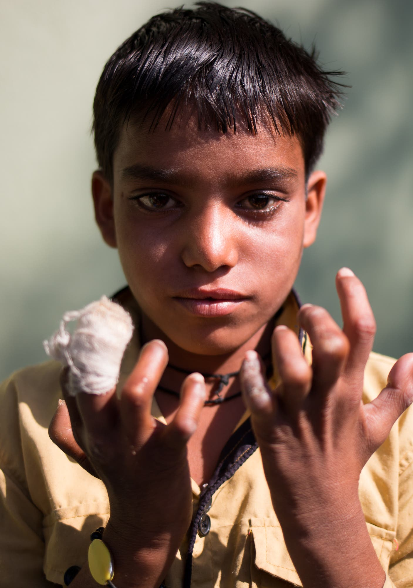 A young boy with claw hands. Once his ulcers are under control, he will have reconstructive surgery to regain use of his hands.