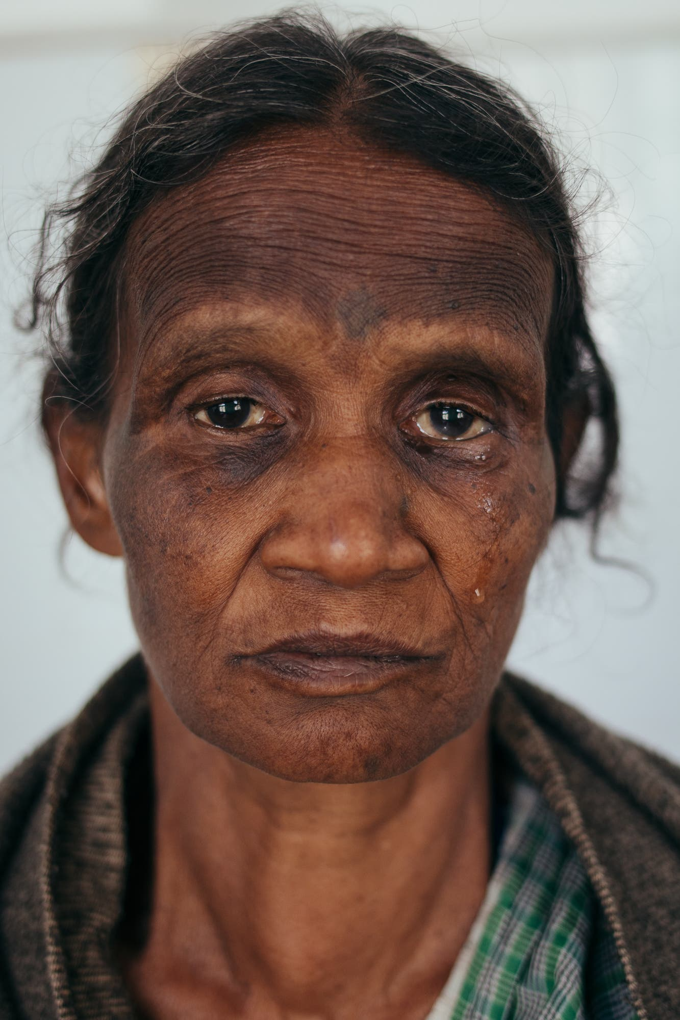 A woman on the leprosy ward at Jesu Ashram Charitable Healthcare Centre for the Destitute and the Poor in Siliguri, West Bengal