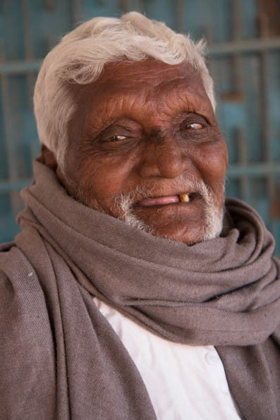 Another side effect of leprosy is loss of eyebrows, called Madarosis, from the Greek 'madao', 'to fall off', which affects approximately 76% of patients.