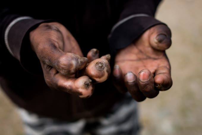The hands of a leprosy patient, showing the effects of longterm unresolved leprosy