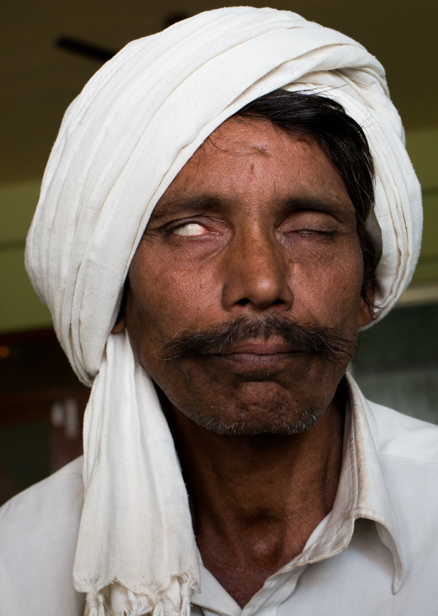 Leprosy can affect facial nerves, and this patient cannot close his right eye.