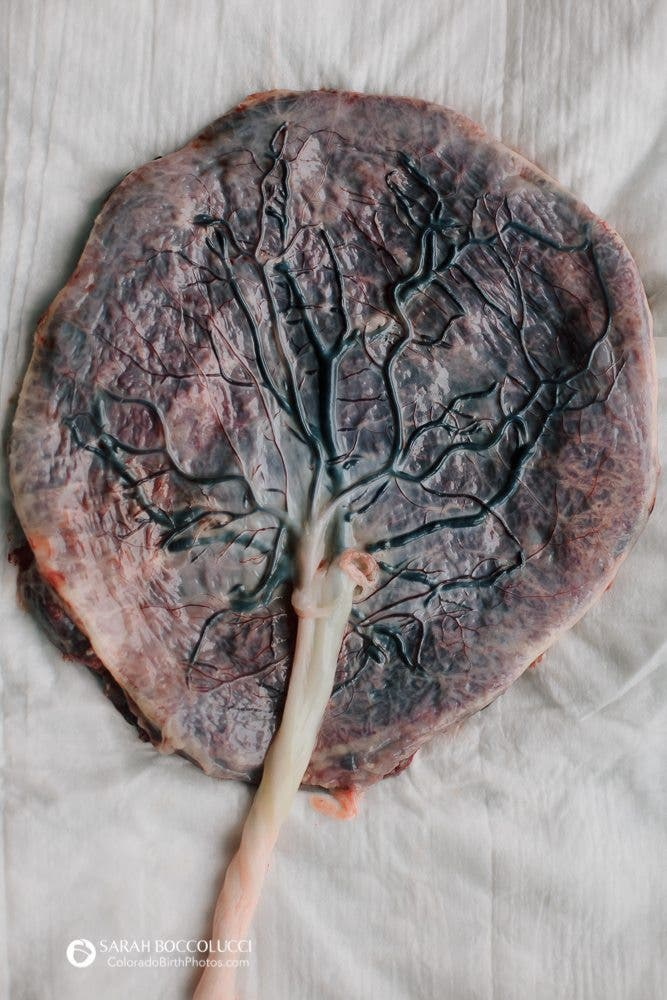 This Image of a Human Placenta Looks Like the Tree of Life
